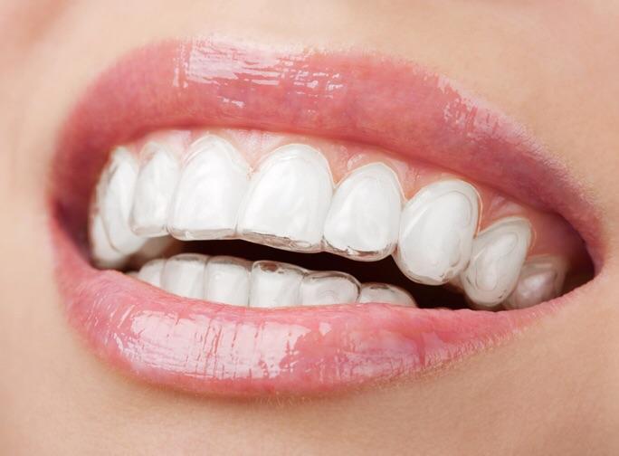 Láthatatlan fogszabályozó készülék