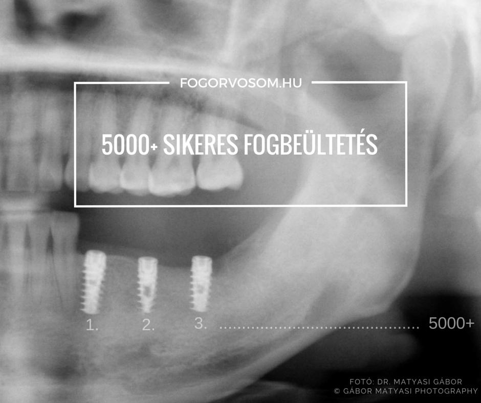 Több mint 5000 sikeres fogbeültetés